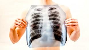 Tuberculose (foto Rijksinstituut voor Volksgezondheid)